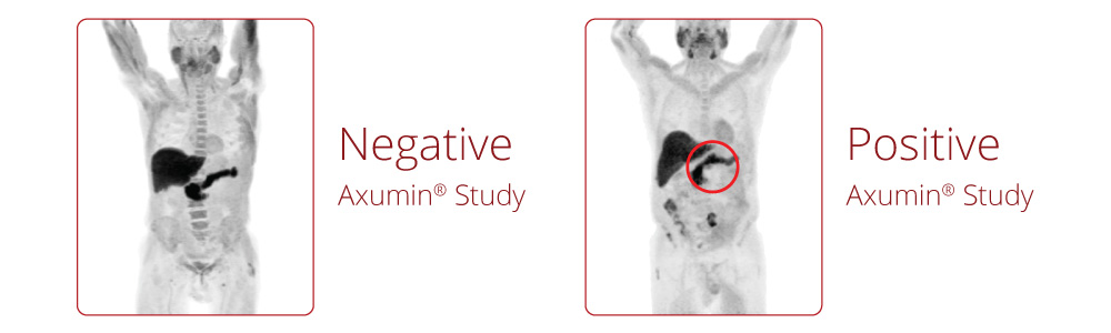 Axumin Case Study