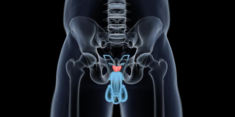 Study Compares MRI-TRUS Fusion Biopsy to Traditional Biopsy